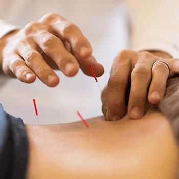 鍼灸総合治療