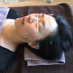 face acupuncture